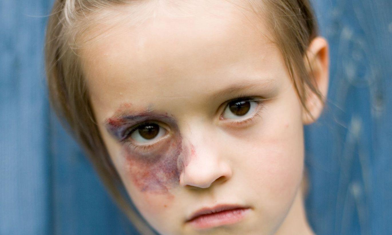 Дети избитые мамами фото