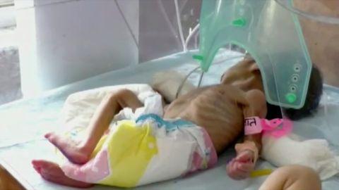 Savipotiga elusalt maetud beebi haiglas magamas.