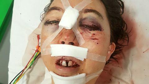 Elizabeth Calton peale õnnetust haiglas.