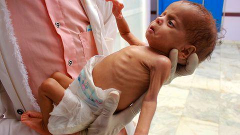 Ravikeskuse töötaja hoiab alatoitumuse all kannatavat Jeemeni last põhjas Hajjahi provintsis 5. juulil, 2020. aastal. ÜRO nimetab Jeemeni sõda maailma halveimaks humanitaarkriisiks. Miljonid Jeemeni lapsed nälgivad, kuna riik ei saa abi.