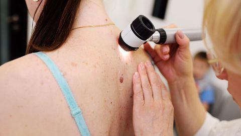 Nahapinnal näha olev ebakorrapärase kujuga moodustis võib tähendada surmaga lõppevat haigust, kus silmaga on näha vaid jäämäe veepealne osa. Melanoomi kõige edukam ravi on varajane avastamine.