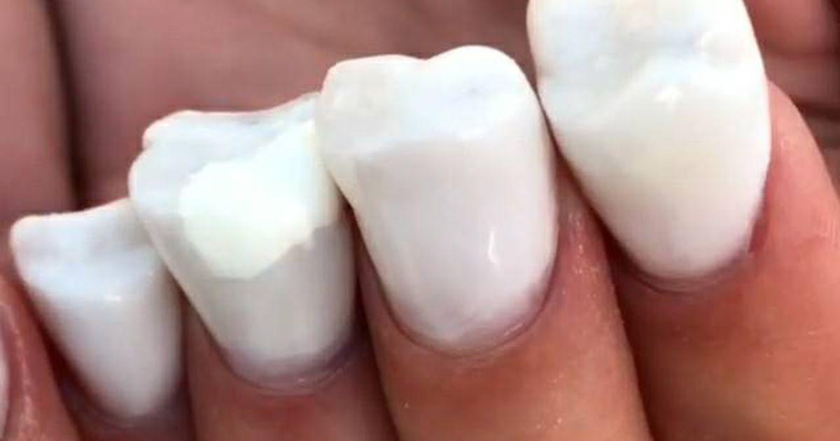 потом зубы на ногтях фото пожарный