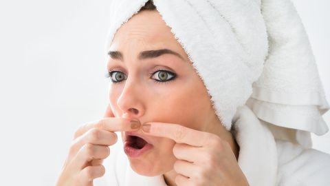 Vistrikud võivad olla tegelikult tsüstid, kus rasu ei pääse naha alt välja.