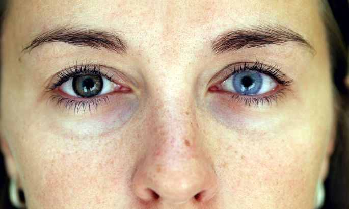 ef073adb7f2 Silmaarst: läätsed ei ole silmadele ohutud - Tervis