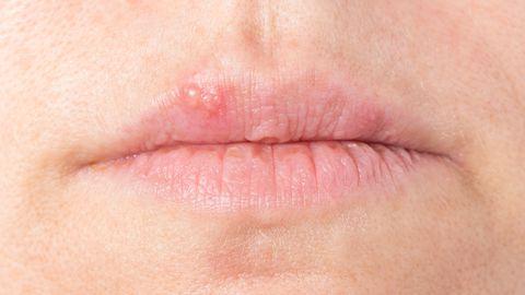 Külmavilli võib huulele tuua nii suudlemine kui nakatanud inimese tassist joomine.