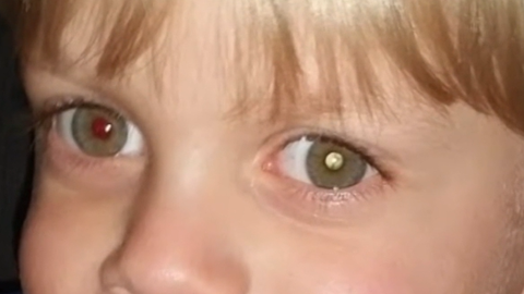 Pildilt on läbi pupilli näha ohtlik vähkkasvaja.