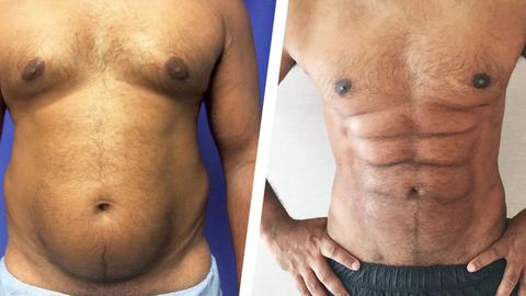Uut tüüpi rasvaimu protseduur - vasakul esialgne keha, paremal kirurgilise sekkumisega saavutatud tulemus.
